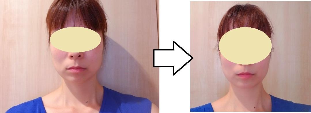 【体験談】ightフェイスブラは本当に効果があるの?口コミも調査!